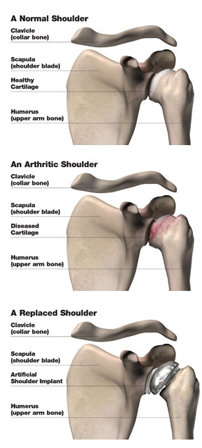 shoulder_composite