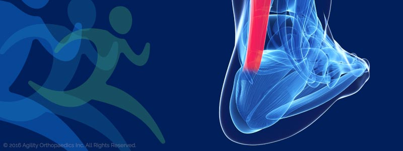 Ankle Pain and Injury Illustration - © Agility Orthopedics