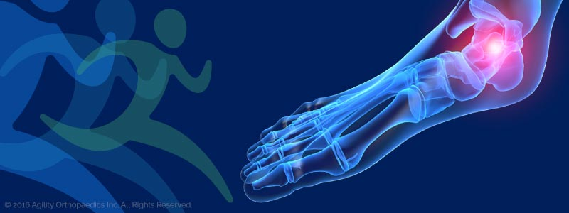 Foot Pain and Injury Illustration - © Agility Orthopedics