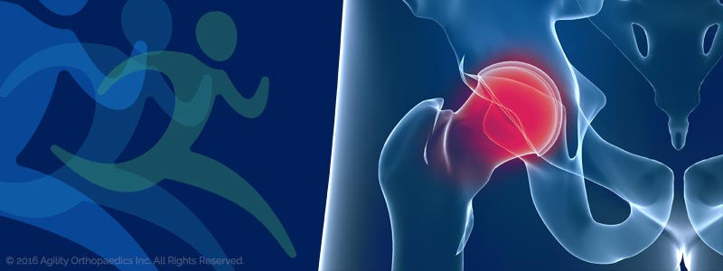 Hip Pain and Injury Illustration - © Agility Orthopedics