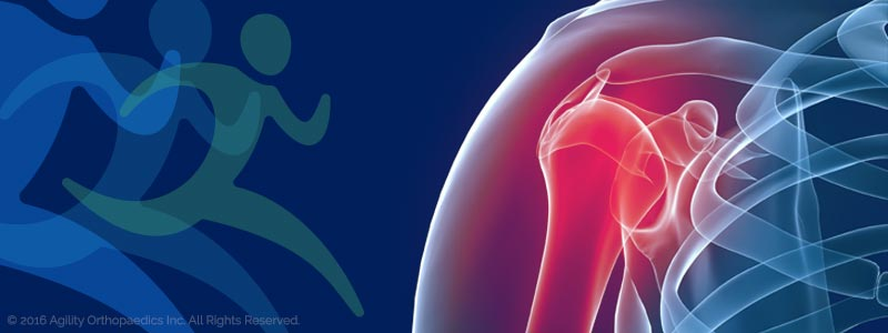 Shoulder Pain and Injury Illustration - © Agility Orthopedics